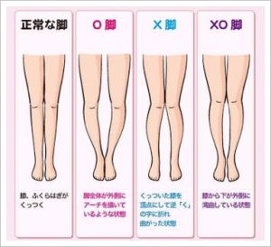 xo脚をチェック!歩き方改善で脚やせも?開脚ストレッチの直し方も1